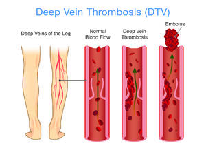 Deep Vein Thrombosis