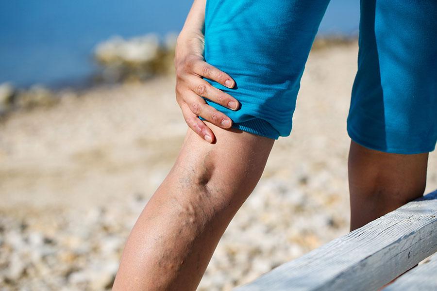 Venouse Disease Symptoms