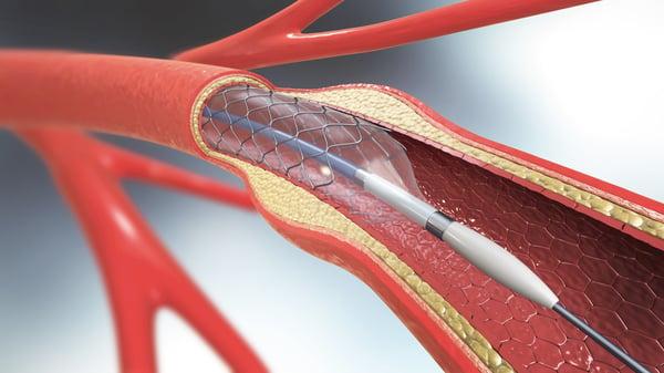 heart stent