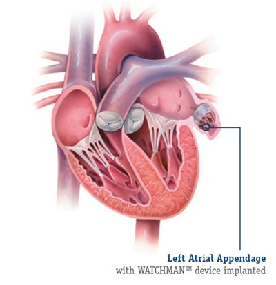 left-atrial-appendage-closure-watchman_anatomical