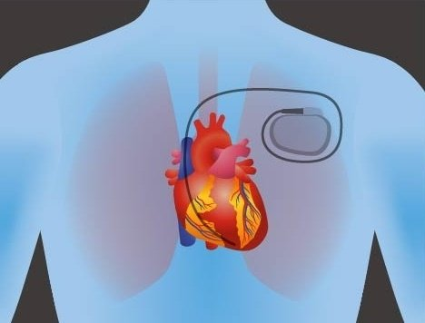 pacemaker [Converted]-304809-edited.jpg